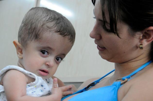 La lucha de Maikol, un bebe de dos años contra la enfermedad de los huesos de cristal, la osteogénesis imperfecta